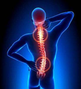 Spinal Cord Stimulation, Southlake, TX