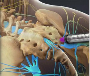 Lumbar Epidural Steroid Injection, Southlake, TX