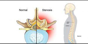 Lumbar Spinal Stenosis, Southlake, TX