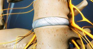 Cervical and Lumbar Discograms, Southlake, TX