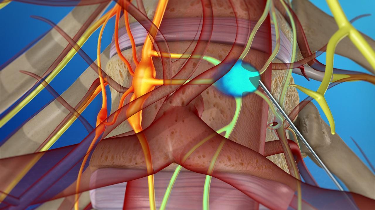 Neurolytic Block : Preparations and Procedure